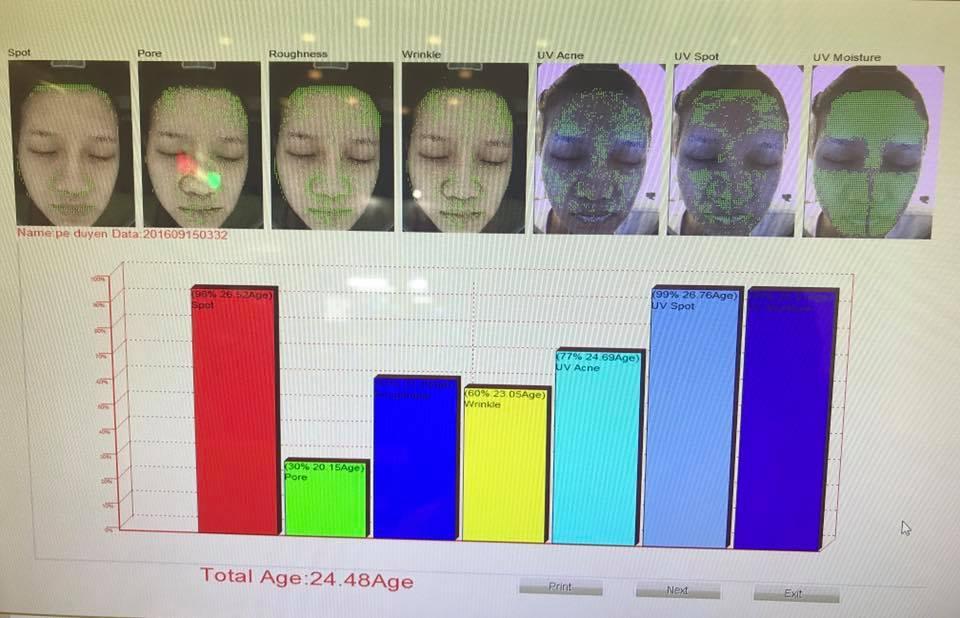 Chỉ số phân tích da sẽ giúp quá trình điều trị nhanh hiệu quả hơn