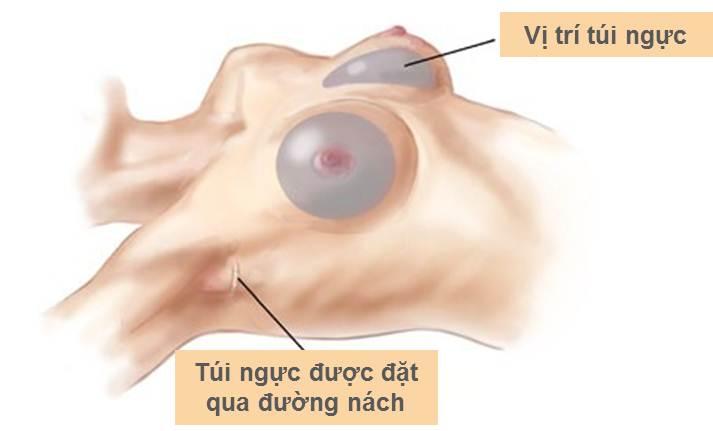 Phẫu thuật lấy túi ngực ra